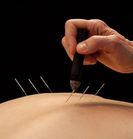 acupuncture-needles-santa-cruz-core